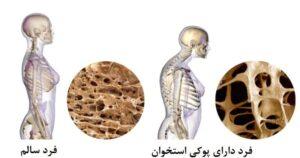 علائم، درمان و پیشگیری از پوکی استخوان